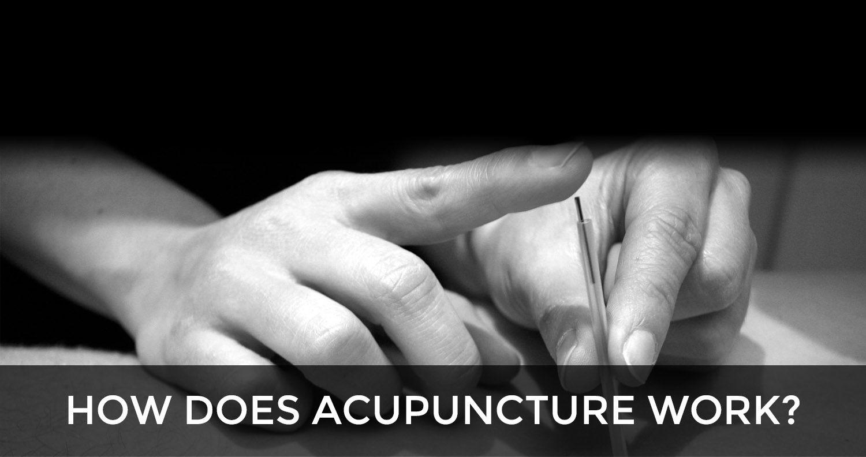 physio acupuncture