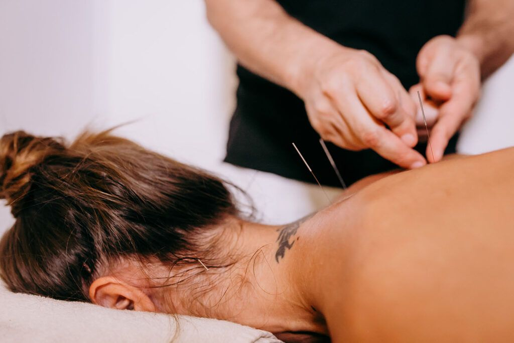 acupuncture physio treatment