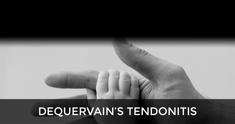 DeQuervain's Tendonitis Tenosynovitis Mommy Thumb